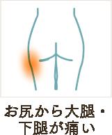 お尻から大腿・下腿が痛い